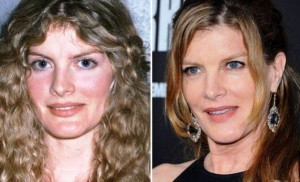 Rene Russo Plastic Surgery Before And After Photos