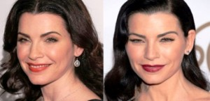 julianna-margulies-plastic-surgery-before-after
