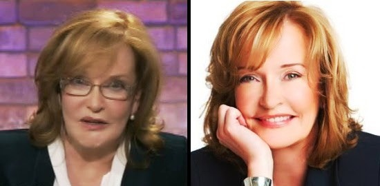 Marilyn Denis Plastic Surgery Before And After Photos
