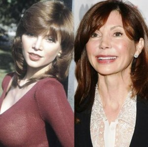victoria-principal-plastic-surgery-before-after