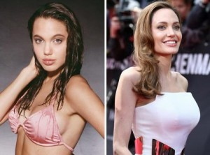 Angelina Jolie Breast Implants Before and After Photo