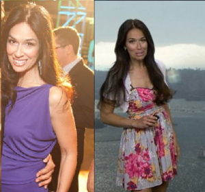 Aloha Taylor Breast Implants Before and After Photos