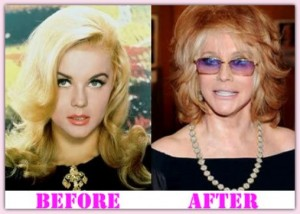 Ann Margret Plastic Surgery Before and After Photos