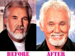 Kenny Rogers Facelift Before and After Photos