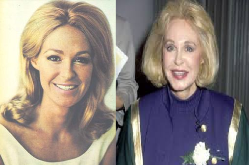 Joan Kennedy Plastic Surgery Before And After Photos