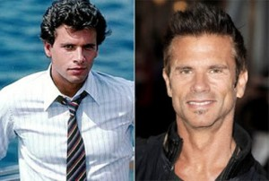 Lorenzo Lamas Plastic Surgery Before and After Photos