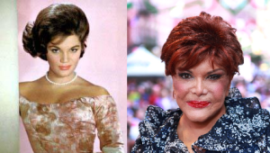 Connie Francis plastic surgery before and after