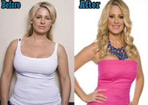 Kim Zolciak tummy tuck before and after
