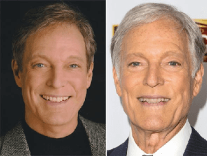 Richard Chamberlain plastic surgery before and after