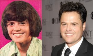 donny osmond plastic surgery before and after