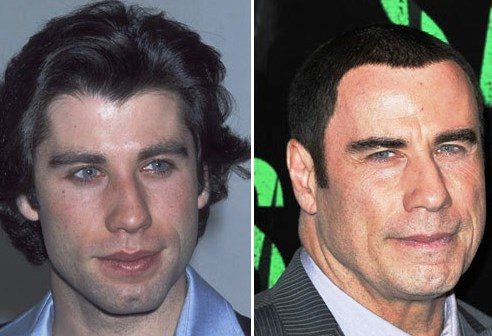 John Travolta Plastic Surgery Before And After Photos