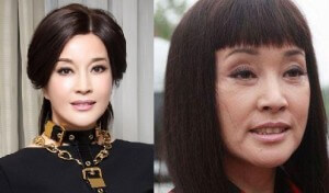Liu Xiaoqing Plastic Surgery before and after photos
