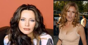 Tracey Bregman Plastic Surgery before and after photos