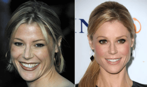 Julie Bowen Plastic Surgery before and after photo