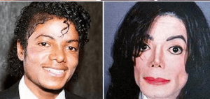 Michael Jackson Plastic Surgery before and after photos