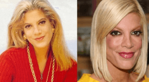 Tori Spelling Plastic Surgery before and after photos