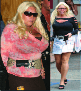 Beth Chapman Plastic Surgery before and after photos