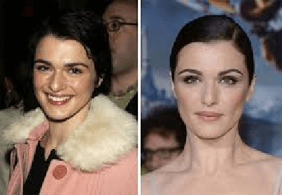 Rachel Weisz Plastic Surgery Before And After Photos