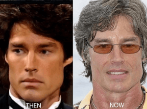 Ronn Moss Plastic Surgery before and after photos