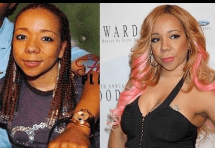 Tiny Harris Plastic Surgery Before And After Photos