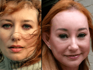 Tori Amos Plastic Surgery before and after photos