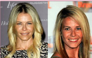Chelsea Handler plastic surgery before and after photos