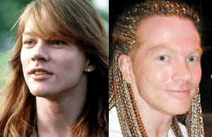 Axl Rose plastic surgery before and after photos