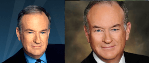 Bill O'Reily plastic surgery before and after photos