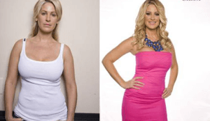 Kim Zolciak plastic surgery before and after photos
