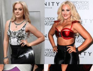 Lacey Schwimmer plastic surgery before and after photos