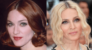 Madonna plastic surgery before and after photos
