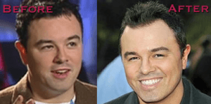 Seth Macfarlane plastic surgery before and after photos