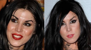 Kat Von D plastic surgery before and after photos