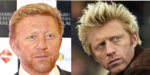 Boris Becker plastic surgery before and after photos