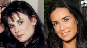 Demi Moore plastic surgery before and after photos