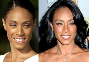 Jada Pinkett-Smith plastic surgery before and after photos