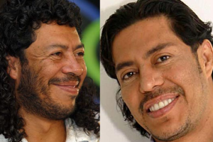 Rene Higuta plastic surgery before and after photos