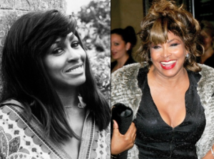 Tina Turner plastic surgery before and after photosa