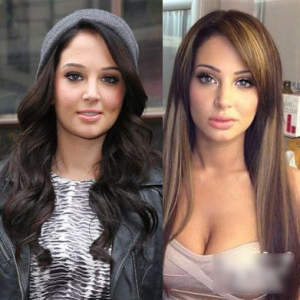 Tulisa plastic surgery before and after photos
