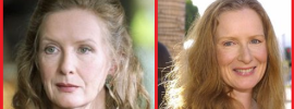 Frances Conroy Plastic Surgery Before and After Photos