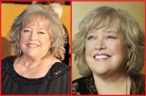 Kathy Bates Neck Lift before and after photos