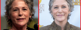 Melissa Mcbride Neck Lift before and after photos