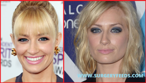 Beth Behrs plastic surgery nose job before and after photos