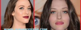Kat Denning plastic surgery before and after photos