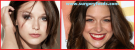 Melissa Benoist plastic surgery before and after photos