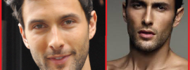 Noah Mills plastic surgery before and after photos