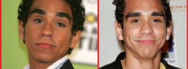 Ray Santiago Plastic Surgery before and after photos